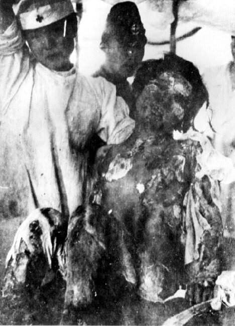 美國用原子彈轟炸日本,圖為全身灼傷的14歲少女 引自wiki 長崎市原子彈爆炸